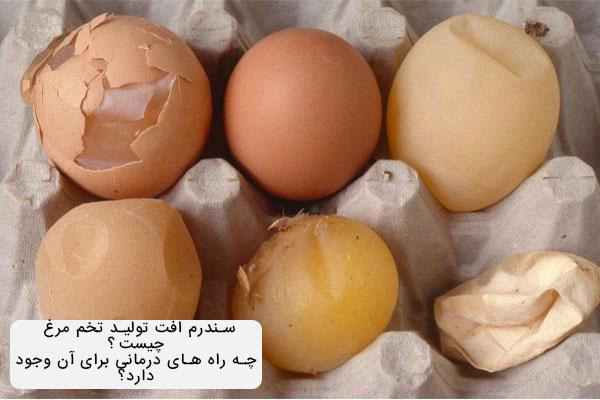 سندرم افت تخم مرغ
